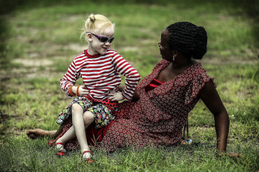 Albino children in Tanzania gain refuge from murderous witch doctors