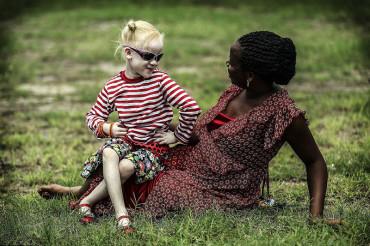 Albino children in Tanzania gain refuge from murderous witch doctors