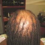 Alopecia, scalp