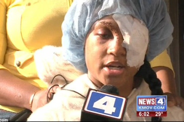 Pregnant Ferguson woman shot in eye after police shoot her car with bean bag