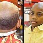 Am i balding