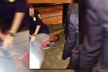 University of Virginia student beaten bloody by cops after charges of public intoxication