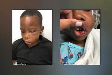 Teacher arrested for breaking boy's jaw, knocking out teeth for being 'disruptive'