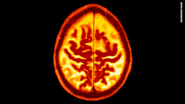 health-dementia.png